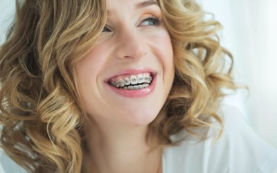 You're Not Too Old: Your Questions About Adult Braces Answered