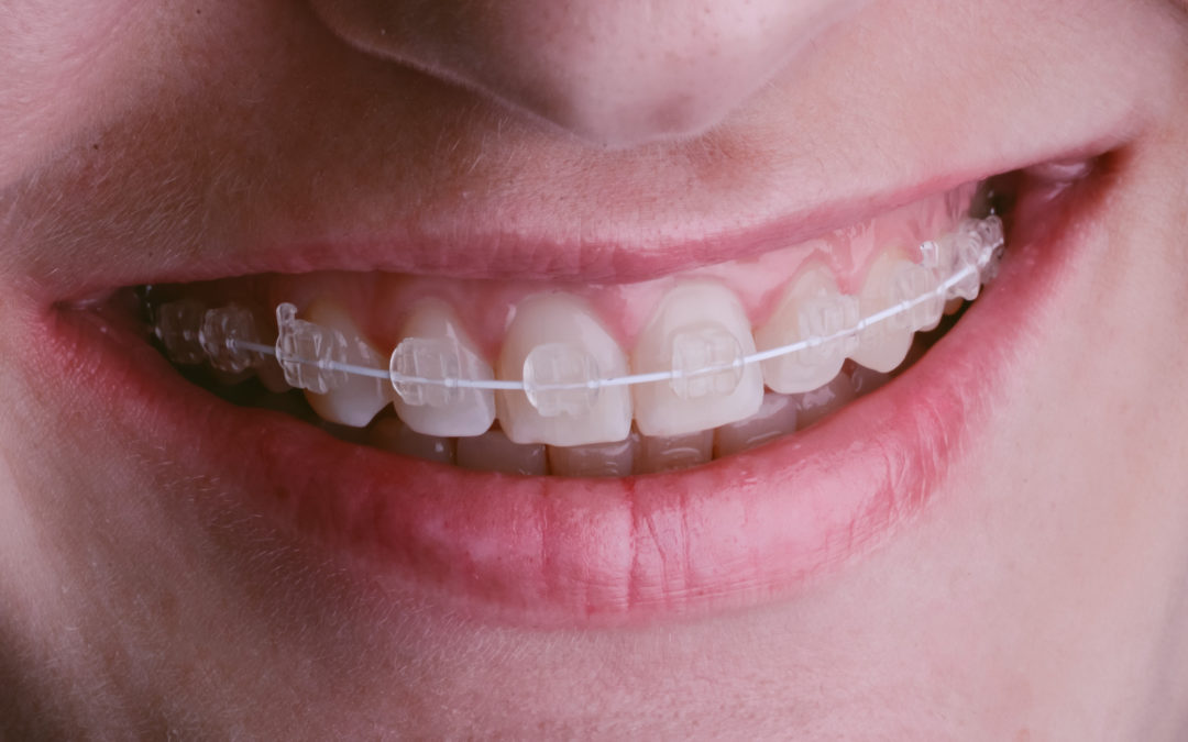 Perfect Your Smile: 9 Benefits of Clear Braces