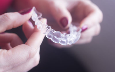 You're Not Too Old: A Look at Clear Braces for Adults